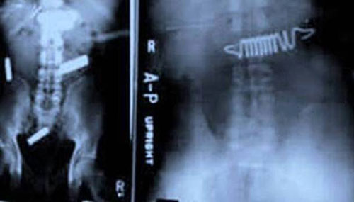 Bedsprings-and-Batteries-In-Stomach-X-Ray